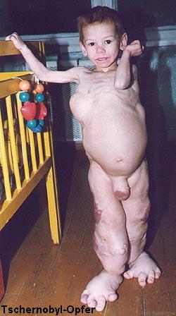 таблетки от глистов ребенку отзывы