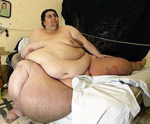 Mensch-fett-rekord