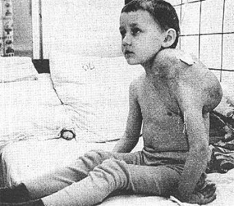 Tschernobyl-radioaktiv-kinder1