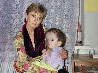 Tschernobyl-radioaktiv-kinder3