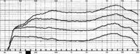 Soundlink Mini Frequenzkurve